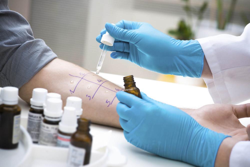 Техніка проведення шкірних проб з алергенами